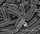 microscopic view of E. Coli
